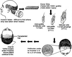 Trasplante capilar FUSS