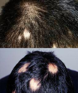 alopecia areata en niños