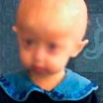 alopecia infantil genetica