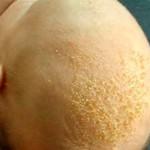 Alopecia infantil por hongos