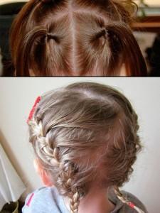 Alopecia infantil por tracción