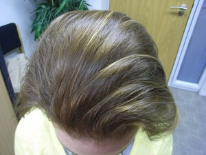Corte de pelo para disimular la alopecia femeninaCorte de pelo para disimular la alopecia femenina