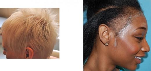 Disimular la alopecia femenina en mujeres