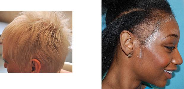 Las máscaras para los cabellos muy secos y estropeados las revocaciones