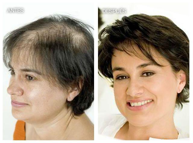 El aceite para los cabellos la naturaleza siberika el espino cerval de mar para las puntas de los ca