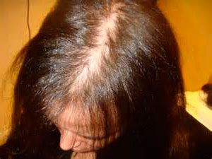 Síntomas de la alopcia androgénica femenina