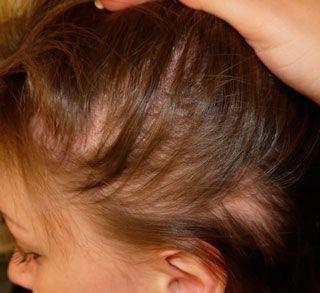Síntomas de la alopecia difusa en la mujer