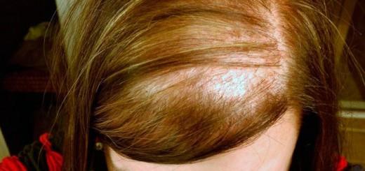 alopecia difusa femenina