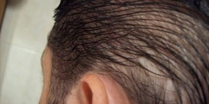 alopecia difusa masculina