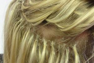 Alopecia y extensiones de pelo