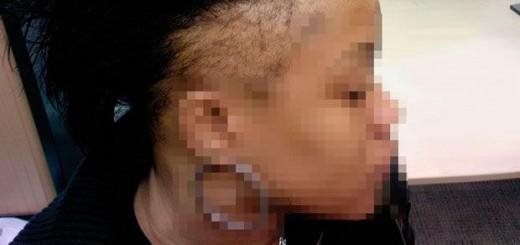 Mujer con alopecia por tracción