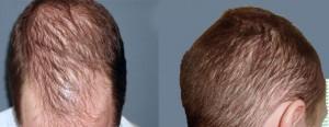 Tratamiento alopecia difusa dudas