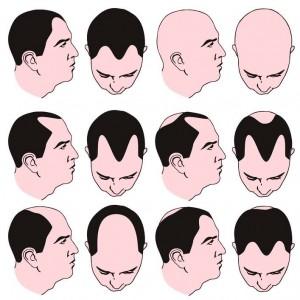 Patrón de caída alopecia androgénica