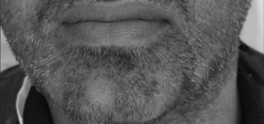 alopecia areta barba