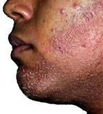 foliculitis barba