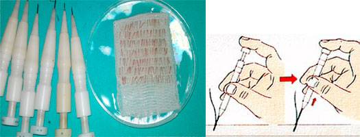Implante capilar FUE con técnica manual