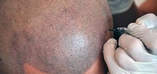 cómo es la micropigmentación capilar