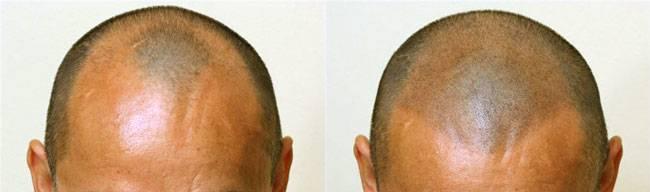 fotos antes y después micropigmentación capilar