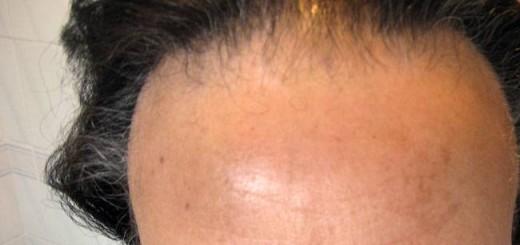 alopecia fibrosante