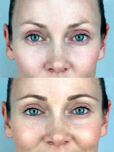 micropigmentacion de cejas resultados